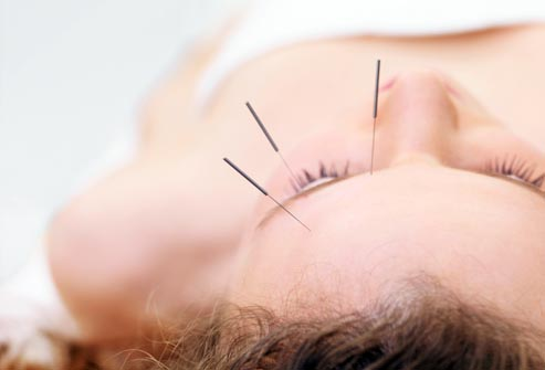 Acupuncture Works Better than Drugs for Headaches